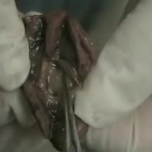 Fetal Pig Female Urinary and  Reproductive Sy